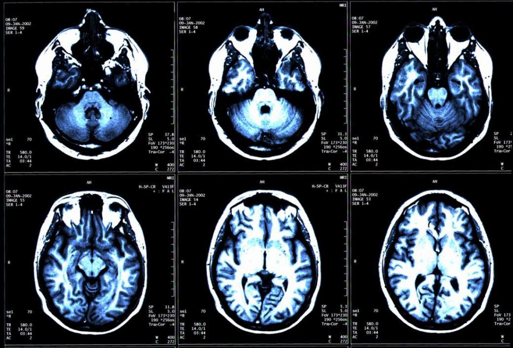 mri-brain-scan